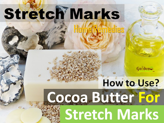 Cocoa Butter for stretch marks, how to lighten stretch marks fast with Cocoa Butter, how to get rid of stretch marks, home remedies for stretch marks, remove stretch marks, stretch marks treatment,