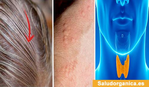 signos que podrían indican un problema con la glándula tiroides
