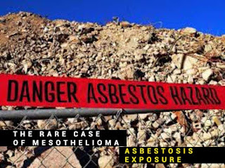 The Rare Case of Mesothelioma, Asbestosis Exposure