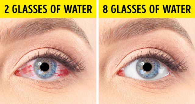 Mẹo đơn giản chữa bệnh khô mắt