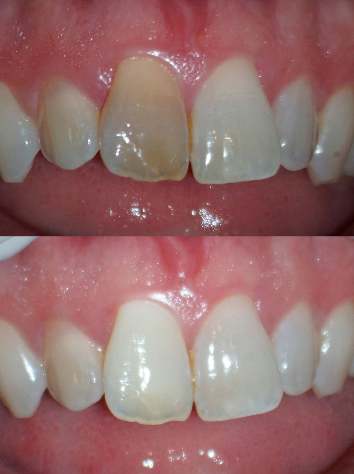 Tooth Stain Removal