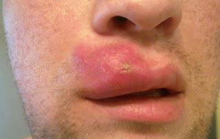How To Get Rid Of A Blind Zit Biggest Pimple Get Rid Of