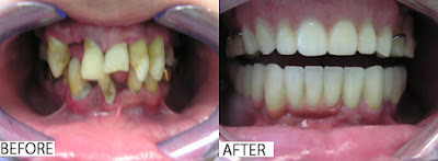 http://www.chennaidentalclinic.in/full-mouth-rehabilitation.html