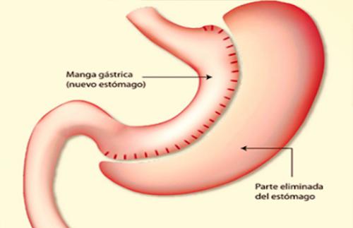 Vivir sin estómago: La Gastrectomía