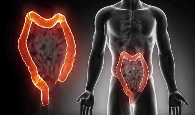 أعراض سرطان القولون والمستقيم