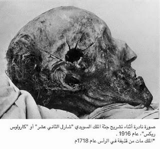 صورة اثناء تشريح جثة الملك السويدي شارل الثاني عشر الذي مات في عام 1718م  وقد تم التقاط هذه الصورة عام 1916م