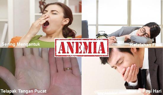 Kemudian, ada beberapa gejala anemia lainnya yang lebih spesifik jika dilihat dari jenis jenis anemia, diantaranya sebagai berikut :