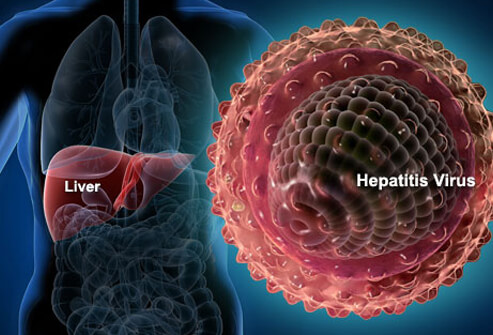 hepatitis virus, hepatitis b, how to cure virus