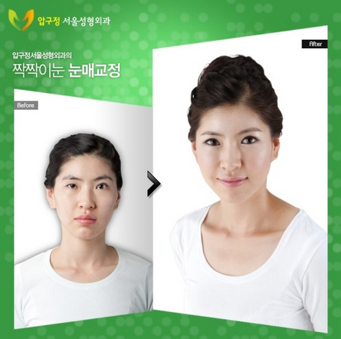 Korean Plastic Surgery Changes