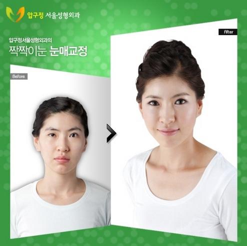 Korean Plastic Surgery Changes