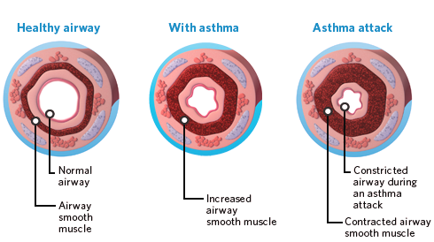 the health website : asthma asthma diagram