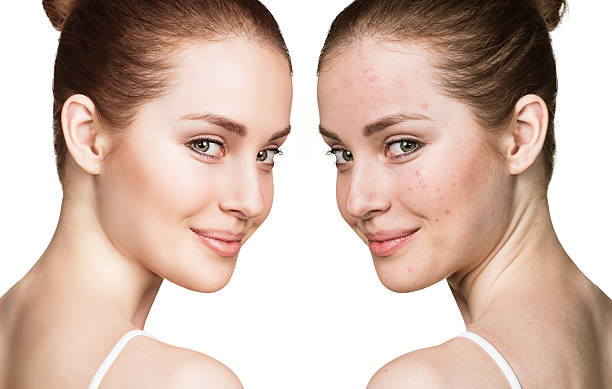 Be Free From Acne