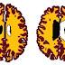 Ο εγκέφαλος των υπέρβαρων είναι δέκα χρόνια πιο γερασμένος από των αδύνατων