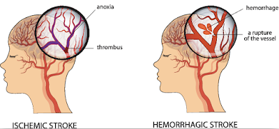 stroke treatment chennai