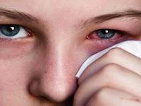 4 Cara Mengobati Sakit Mata Dengan Cepat