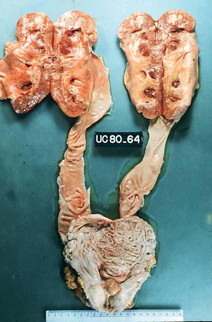 hiperplasia fibroglandular de la próstata