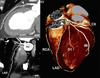 MSCT Coronary