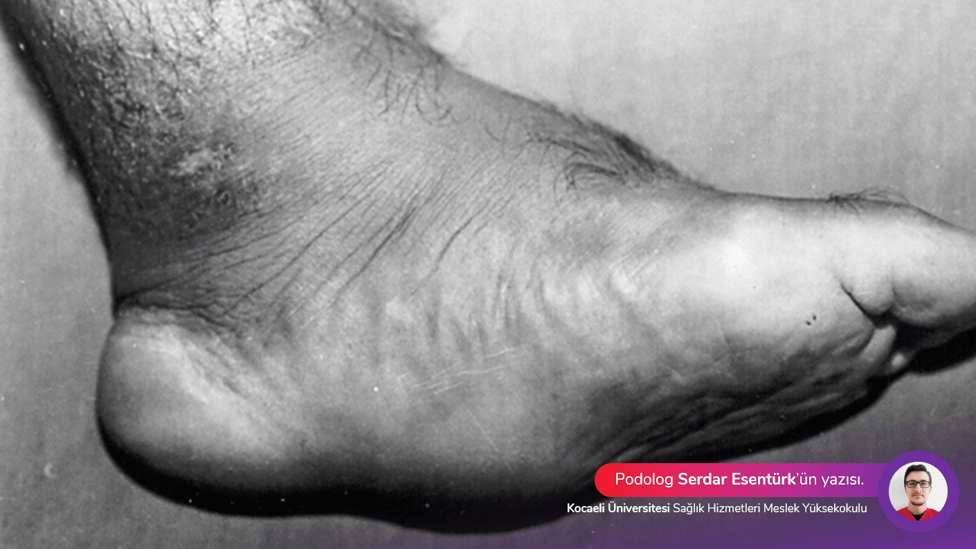 Charcot hastalığı, semptomları ve tedavisi