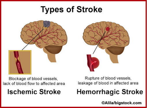 Delhi Stroke Amp Paralysis Physiotherapy Treatment In Delhi