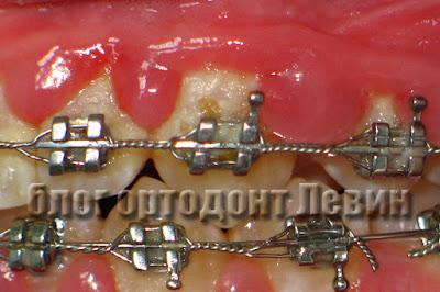 Воспаление десны у пациента с брекетами