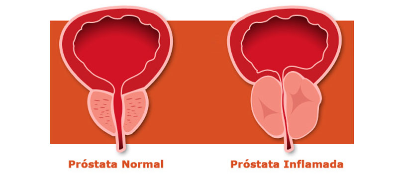 Resultado de imagen de problemas prostata