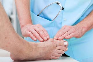 Mengatasi Sakit Asam Urat, Artikel Penyebab Penyakit Asam Urat Dan Kolesterol, Gejala Awal Terkena Asam Urat
