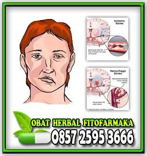 obat stroke ringan, obat stroke tradisional, obat stroke paling manjur