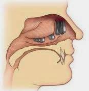Obat Herbal Tumor Hidung