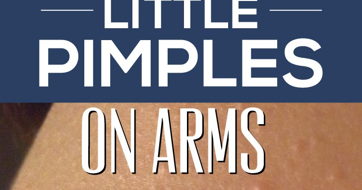 how to get rid of pimples on arms