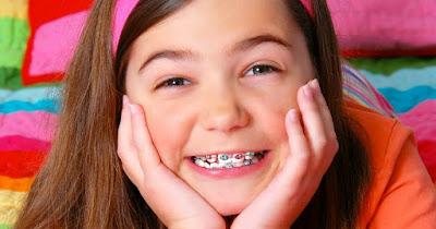 Niềng răng trẻ em vào thời điểm nào?