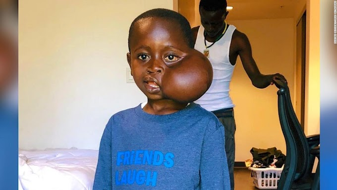 Congolese boy who traveled to US to have facial tumor removed dies