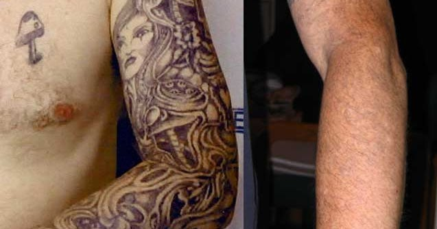 Tattoo Removal Blue Ink Natural Tattoo Removal Reviews