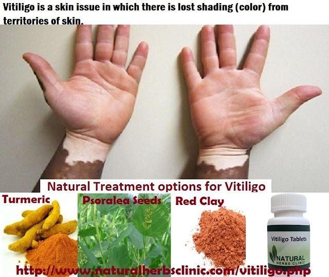 Herbal Treatment for Vitiligo