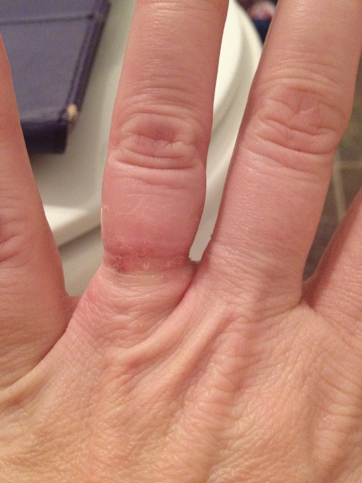 Allergic to my wedding ring
