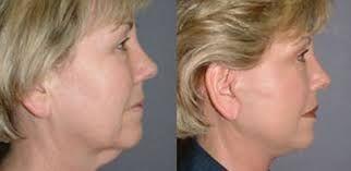 Reducing eliminating facial jowls