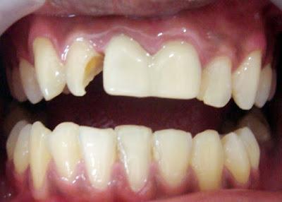 Gigi Berlubang Sebaiknya di Cabut atau di Tambal?