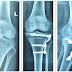 Tập vật lý trị điều trị gãy mâm chày, nứt mâm chày sau giải phẫu