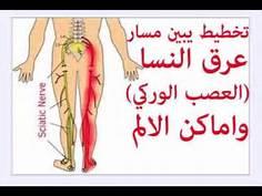 Photo of تعرف علي عرق النسا اسبابه وعلاجه