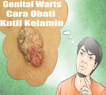 agen jual obat kutil kelamin herbal di karawang wa 081 321 727 234 / 0816 3223 1150