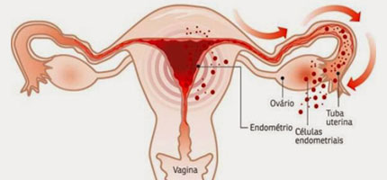Diagnóstico da Endometriose difícil