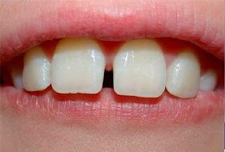 Hàn đóng kẽ răng thưa là gì?
