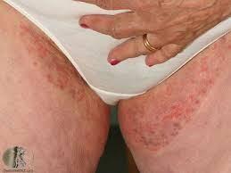 Image Bahaya Penyakit Gatal Di Selangkangan