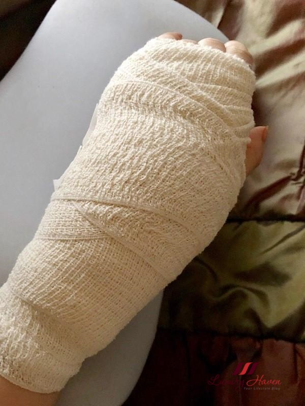 hand bandage after ganglion cyst surgery