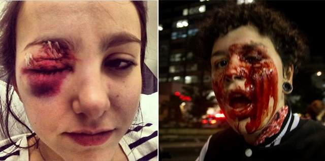 Por que eles atiram nos olhos? A jovem Déborah Fabri, uma heroína dos novos tempos