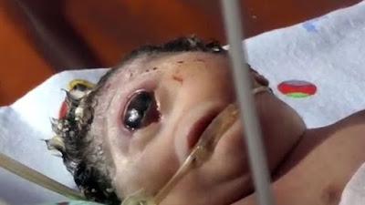 إندونيسية تنجب طفلة عملاقة بعين واحدة