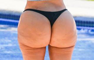 Kim Kardashian's cellulite butt