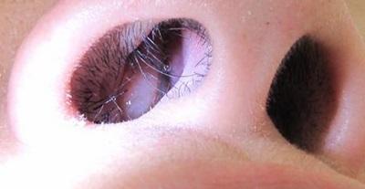 8 Bahaya Operasi Polip Hidung