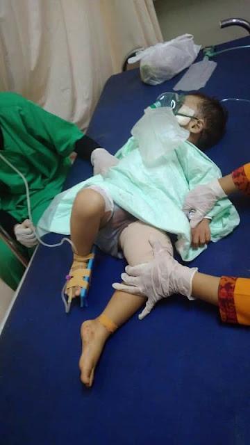 6 Fakta Mengerikan Ledakan Bom Pasuruan, Berikut Foto dan Video Kejadian