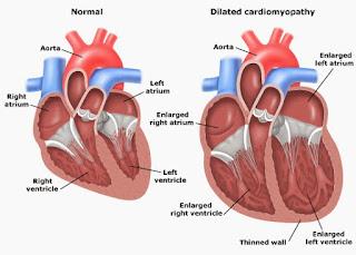 Cara mengatasi pembesaran jantung