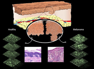 Diagram showing differences that can be observed in cell morphology in normal skin cells versus melanomas. Pink images show differences following biopsy and staining by a pathologist. Green slices show differences in fluorescence pattern of mitochondria using multiphoton microscopy. Source: Irene Georgakoudi, Tufts University.